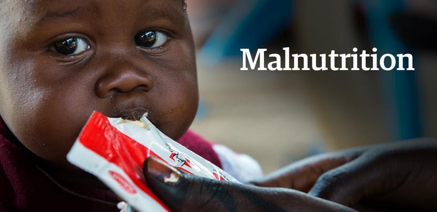 Cinq choses que vous ignorez peut-être sur la malnutrition
