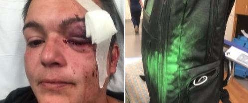 ÉTATS-UNIS : VIOLENTES ATTAQUES CONTRE LES JOURNALISTES